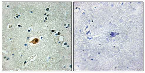 Immunohistochemical analysis of formalin-fixed and paraffin-embedded human brain tissue using SOX8-9-17-18 antibody
