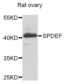 Western blot analysis of extracts of Rat ovary cells using SPDEF antibody