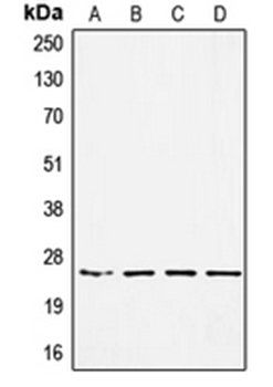 Western blot analysis of HEK293 (Lane 1), MDAMB453 (Lane 2), SW480 (Lane 3), A549 (Lane 4) whole cell lysates using SSX1 antibody