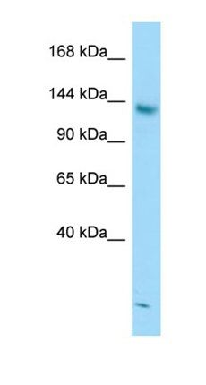 Western blot analysis of Jurkat Whole Cell tissue using STAG2 antibody