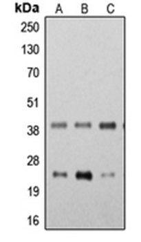 STING antibody   anti STING antibody   Biorbyt