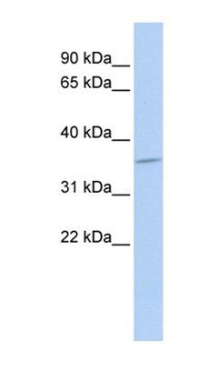 Western blot analysis of MCF7 cell lysate tissue using SULT1C4 antibody