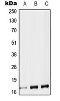 Western blot analysis of HEK293T (Lane 1), SP2/0 (Lane 2), H9C2 (Lane 3) whole cell lysates using TAC1 antibody