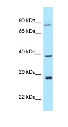 Western blot analysis of OVCAR-3 Whole Cell tissue using TAF7L antibody
