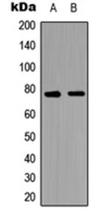 Western blot analysis of PC3 (Lane1), NIH3T3 (Lane2) whole cell using TAK1 antibody