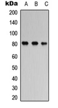 Western blot analysis of SHSY5Y (Lane1), mouse brain (Lane2), rat brain (Lane3) whole cell using TAU (phospho-S356) antibody