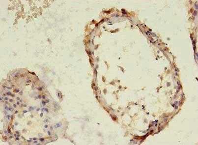 Immunohistochemical staining of human testis using TBC1D20 antibody