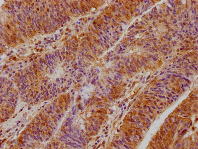 Immunohistochemical staining of human colon cancer using TBC1D25 antibody