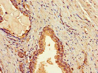 Immunohistochemistry of paraffin-embedded human prostate tissue using TBC1D7 antibody