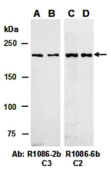 Western blot analysis of total cell extracts from human Jurkat(Lane1) and mouse thymus(Lane2) using TET2 antibody