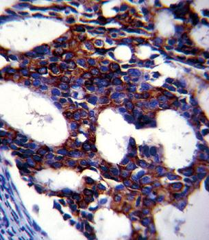 Immunohistochemical staining of human breast carcinoma tissue using TGFB2 antibody (antibody dilution at 1:10-50)
