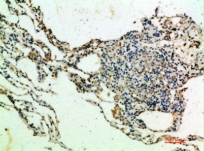 Immunohistochemical staining of human-lung using THBS4 antibody