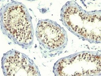 Immunohistochemical staining of Human testicular carcinoma using Thymidylate Synthase Cocktail antibody
