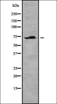 Western blot analysis of Jurkat whole cell lysates using TIF-IA -Phospho-Ser649- antibody