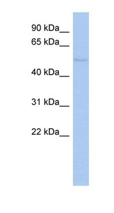 Western blot analysis of HepG2 cell lysate tissue using TIGD4 antibody