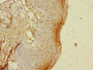 Immunohistochemical staining of human skin tissue using TIGD4 antibody