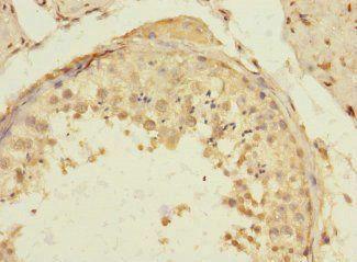 Immunohistochemical staining of human testis tissue using TIGD4 antibody