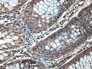 Immunohistochemical staining of fetal colon showing cytoplasmic tissue using TIGD7 antibody