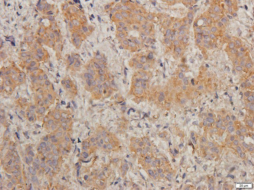 IHC-P image of human breast cancer tissue using TIMP1 antibody (2.5ug/ml)
