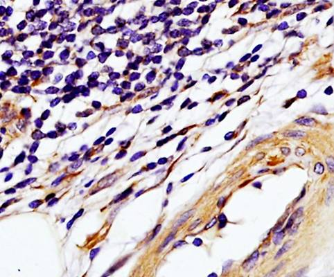 IHC-P of human colon carcinoma tissue using TIMP1 antibody (dilution at 1:250)
