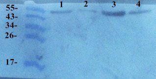 Western blot analysis of human breast cancer 4 (lane 1),breast cancer 3 (lane 2), breast cancer 2 (lane 3), breast cancer 1 (lane 4) tissue using TIMP1 antibody (primary antibody at 1:200)