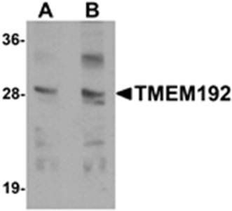 Western blot analysis of SK-N-SH cell lysate at (A) 0.5 and (B) 1 ug/mL using TMEM192 antibody