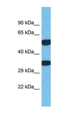 Western blot analysis of human Jurkat tissue using TMEM68 antibody
