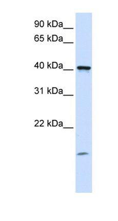 Western blot analysis of human Placenta tissue using TMEM79 antibody