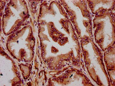 Immunohistochemistry of paraffin-embedded human prostate tissue using TMEM79 antibody