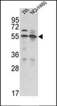 Western blot analysis of in 293, NCI-H460 cell line lysates (35ug/lane)using TMPRSS2 antibody (primary antibody dilution at: 1:1000)