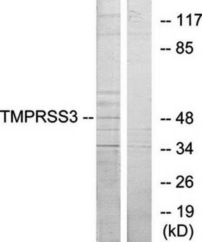Western blot analysis of extracts from HUVEC cells using TMPRSS3 antibody