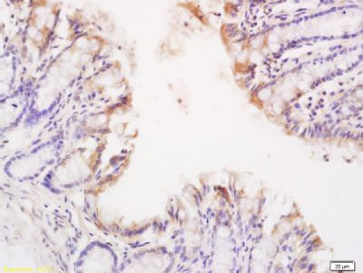 Immunohistochemical staining of mouse small intestine tissue using TNFR1 antibody.