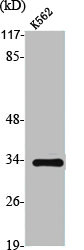 Western blot analysis of K562 cells using TRADD antibody