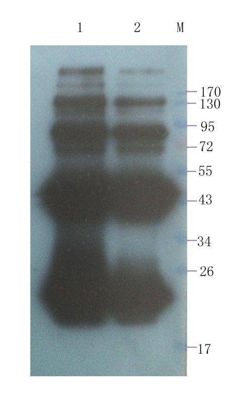 WB analysis of Transthyretin-his recombinant protein 200 ng (lane 1), Transthyretin-his recombinant protein 100 ng (lane 2)  using Transthyretin antibody (1 ug/ml)