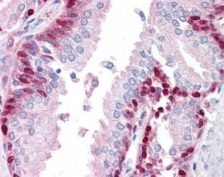 Immunohistochemical staining of paraffin embedded human prostate tissue using TRIP antibody (primary antibody at 1:200)