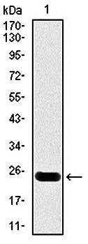 Western blot analysis of human (AA: 88-249) recombinant protein using troponin T2 antibody