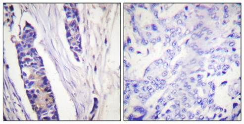Immunohistochemical analysis of formalin-fixed and paraffin-embedded human breast carcinoma tissue using Tubulin beta antibody