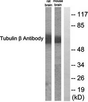 Western blot analysis of extracts from rat cells and mouse brain cells using Tubulin beta antibody