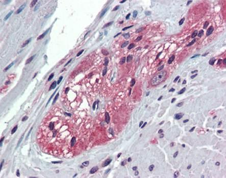Immunohistochemical staining of paraffin embedded human colon tissue using TXLNB antibody (primary antibody at 1:200)