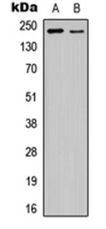 Western blot analysis of HEK293T EGF-treated (Lane1), NIH3T3 EGF-treated (Lane2) whole cell using VEGFR2 (phospho-Y1175) antibody