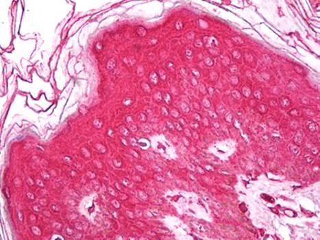 Immunohistochemical staining of paraffin embedded human skin tissue using Vimentin antibody (primary antibody at 1:200)