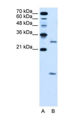 Western blot analysis of HepG2 cell lysate tissue using VMA21 antibody