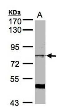Western Blot analysis of A:Hela S3 whole cell lysate using XE7 antibody