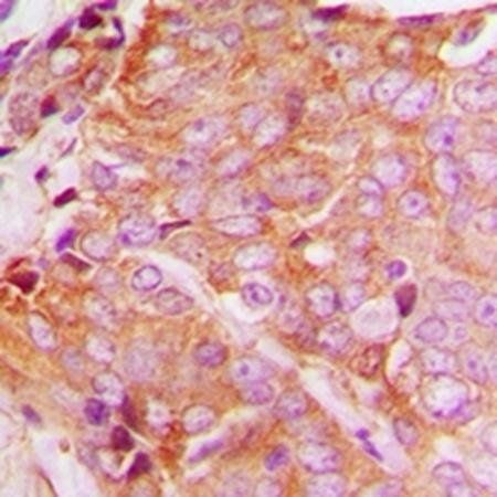 Immunohistochemical analysis of formalin-fixed and paraffin-embedded human breast cancer tissue using YTHDF1 antibody