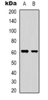 Western blot analysis of YTHDF1 expression in HepG2 (Lane 1), HEK293T (Lane 2) whole cell lysates using YTHDF1 antibody