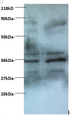 Western blot analysis of (Lane 1): EC109 whole cell lysate(Lane 2): 293T whole cell lysateusing Zinc finger BED domain-containing protein 1 protein antibody (Biotin)