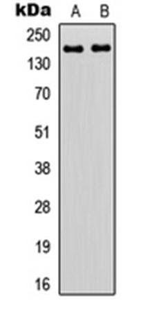 Western blot analysis of HEK293T (Lane1), HeLa (Lane2) whole cell using ZNF608 antibody