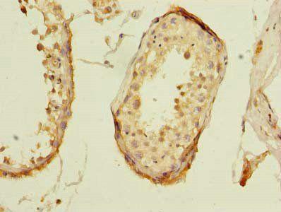Immunohistochemical staining of human testis tissue using ZNF614 antibody