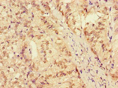 Immunohistochemical staining of human adrenal gland tissue using ZRANB3 antibody
