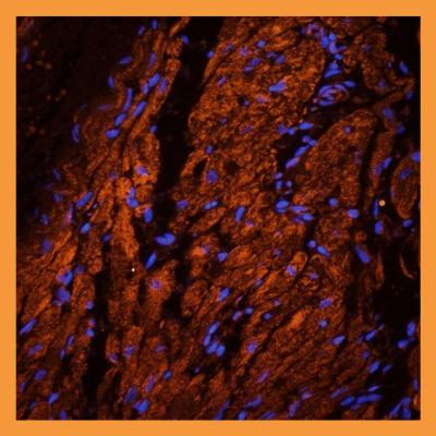 Mlkl antibody